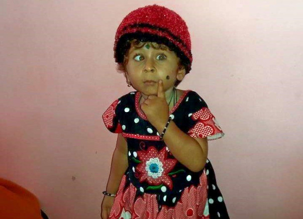 Help Baby Kruthika Fight Lymphnode Cancer