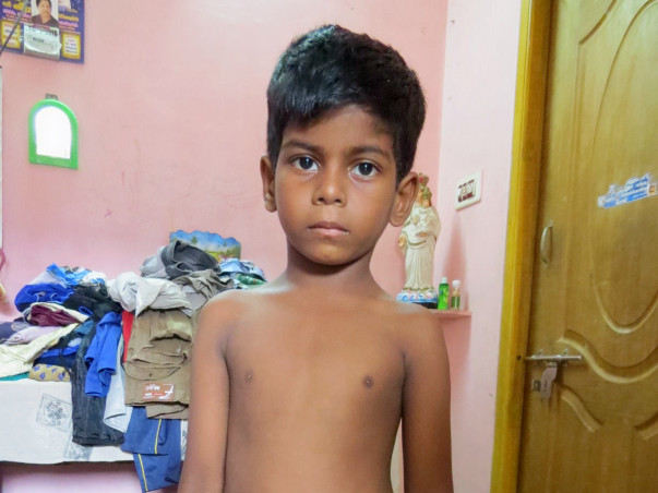 Help for 5 year old Divesh's Colostomy Closure Surgery