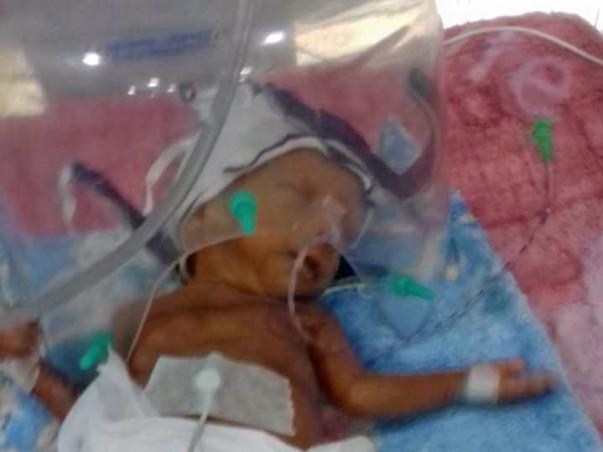 Help my baby boy fight Prematurity
