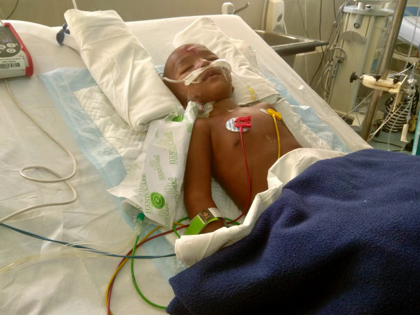 Help Jay Come Out Of Ventilator Support