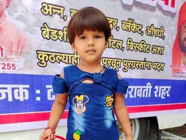 Help 4-Year-Old, Kshitija Ninnore Fight Burn Injuries