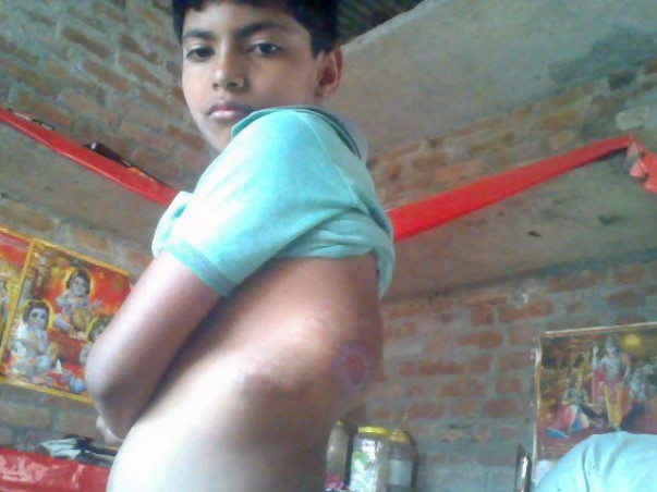 Help My Son Pankaj Get Treatment This Fund Raising For Kidney Fongtion