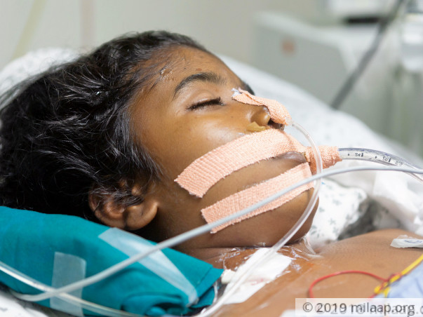 This Girl's Vital Organs Are Failing One By One, Needs Urgent Help