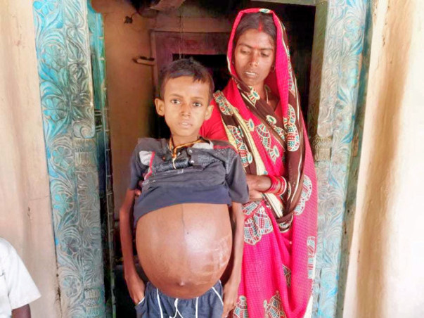 12 Years Old Pawan Kumar Yadav Needs Your Help Fight Massive Splenomegaly
