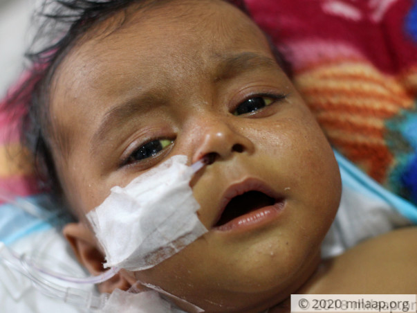 5-Month-Old With Liver Disease Has Few Days Left To Get Transplant
