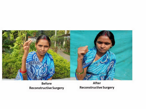 Reconstructive surgery to address deformities in women