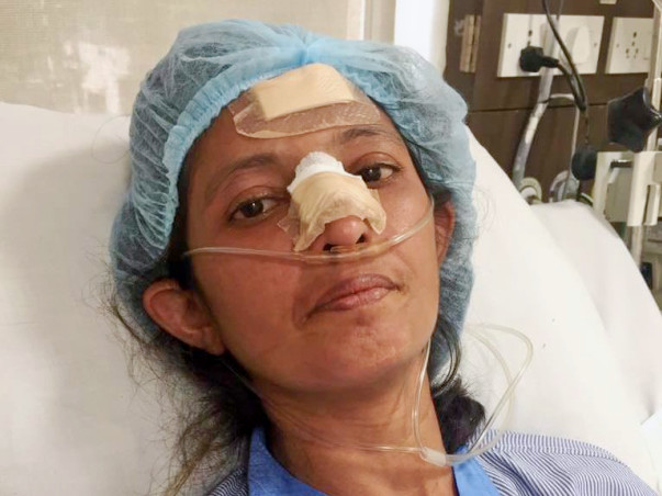 Help Dipti Joshi Fight Scleroderma