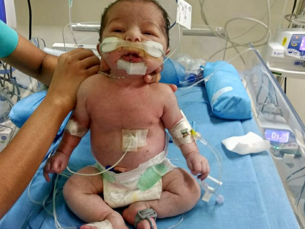 2 Months Old Baby of Sindhuri Needs Your Help Fight Multi Organ Infection