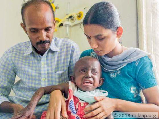 Baby Lakshana's Immune System Has Given Up On Her, You Can Help Her