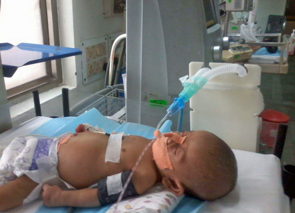 Help save baby Ghansham who's fighting against Shock& respiratory fail