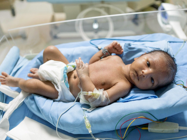 Born After 8 Years Of Marriage, Swapna's Baby Is Fighting To Survive