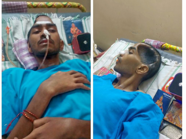 Help Manikandan Who Is Fighting For His Life From A Gory Accident