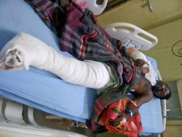 Please Help Swamy Recover From A Major Accident