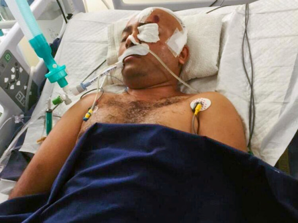 Support Swamy Vinod Recover From Accident