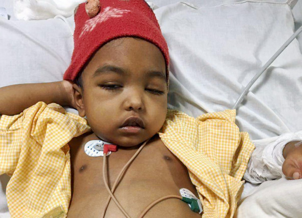 Help 4 year old Swithin to fight With His Kidney Disease