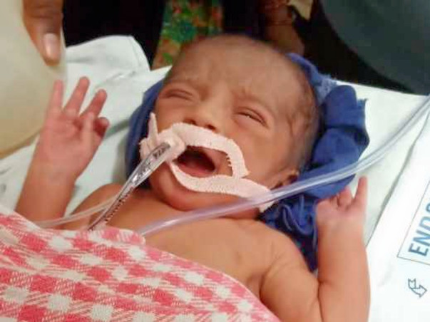 Help 1-day-old Baby Recover From Respiratory Issues