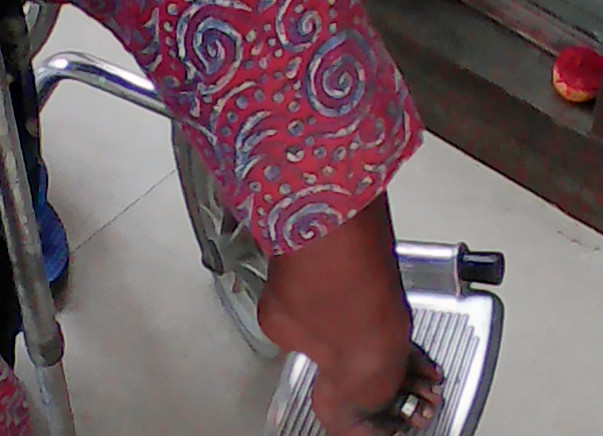 Help me Leonci Leg Treatment