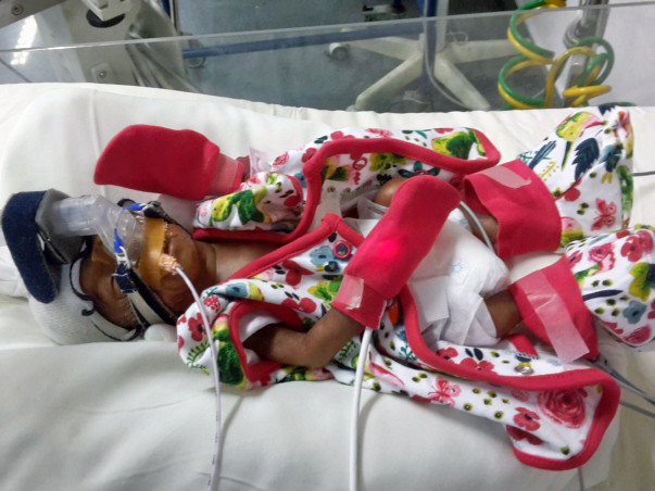 Help New Born Baby Fight A Respiratory Infection