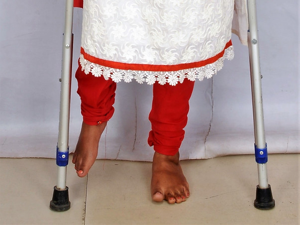 Funds To Support My Friend's Post-polio Rehabilitative Surgery
