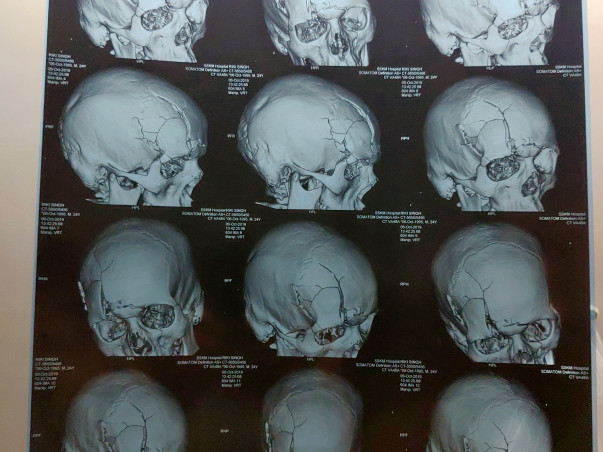 My Brother Is Struggling With Multiple Skulls, Facial Bones Fracture And Brain Injury, Help Him