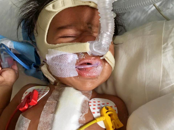 Help 2-Month-Old Baby Fight Heart Diseases