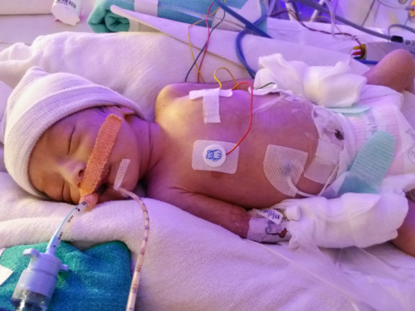 Help My Newborn Baby Girl Fight Congenital Heart Defect - HLHS