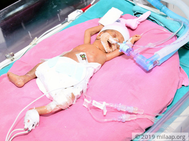 Baby of Santosh needs your help to fight disease