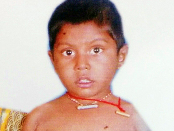 Help Anish Kumar suffering from rare liver disease called ''mdr 3 ''