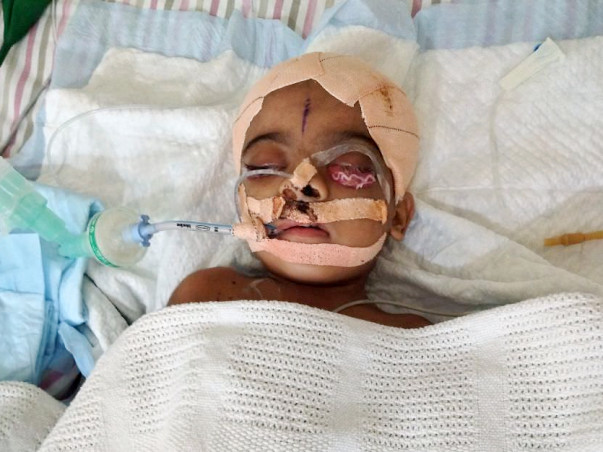 Help Fatima who is on the verge of completely losing her vision