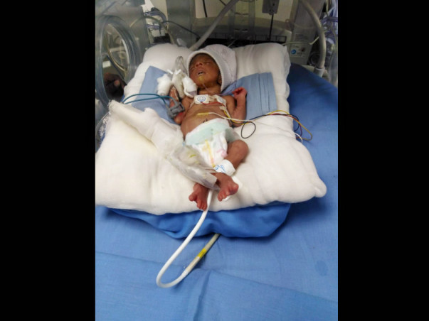 Please Help Me Save My Premature Babies