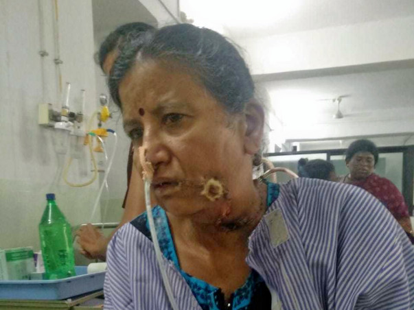 Help Sri Lakshmi For Throat Cancer Operation