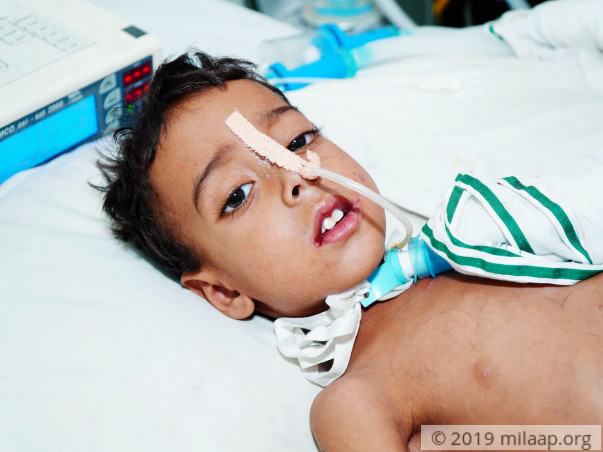 Help Bhageerath Fight Pneumonia