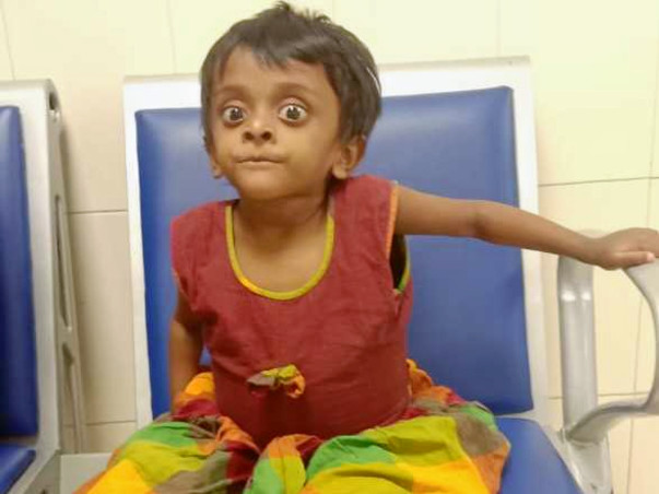 Help my 3 years daughter to recover from liver problem