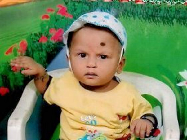 Help 9 Month Old Yuvraj In His Battle For Survival