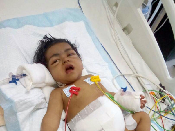 Help our 10-month-old baby girl undergo liver transplant