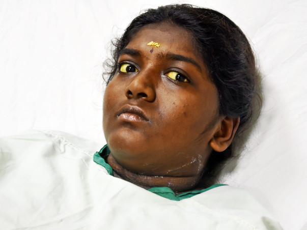 These Parents Cannot Even Buy Medicines For Daughter's Liver Disease