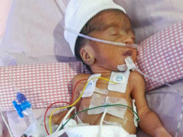 Help Premature Born Roja Fight For Life!