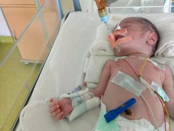 Help 18 Days Old Arjun Fight Nonketotic Hyperglycinemia