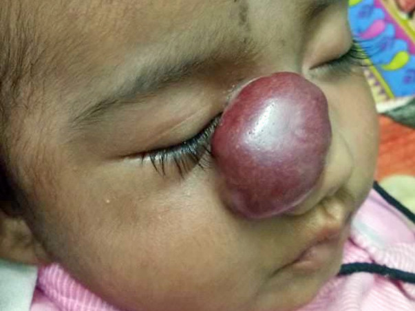 3 Months Old Rashmika Needs Your Help Fight Hemangioma
