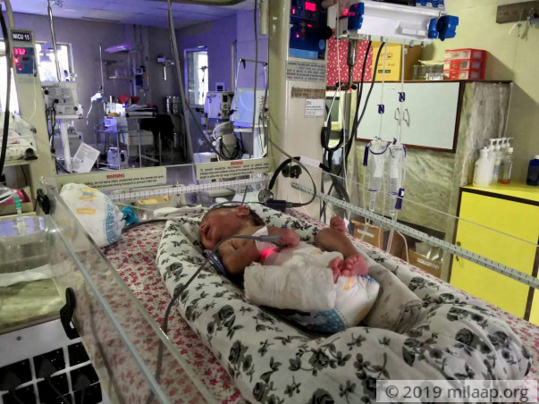 Baby Of Sharmina Ahmed needs your help to survive
