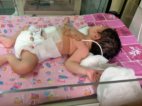 Help Pooja's New Born Baby went through Intestinal Obstruction Surgery