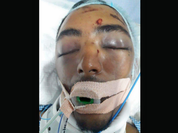 Help Mohamed Zabi Recover From An Accident