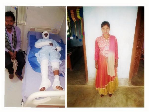 Help Burn Survivor Pratima Get Married