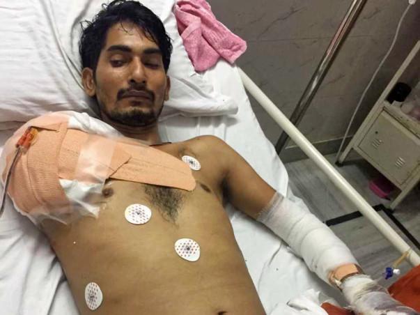 Help Rinku fight Third degree fatal burns and multiple surgeries