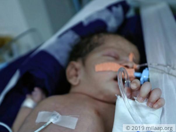 Help Ruksar's Baby Recover From Pulmonary Hemorrhage