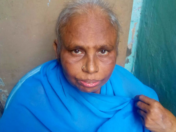 Support Suseela Fight From Cancer