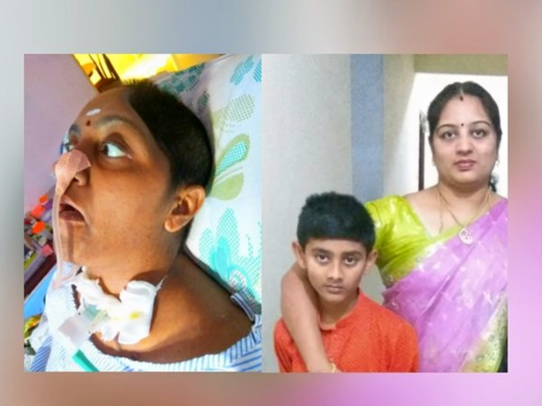 Save Suba, Mother Of My 8-Year-Old Son to Recover From Brain Damage