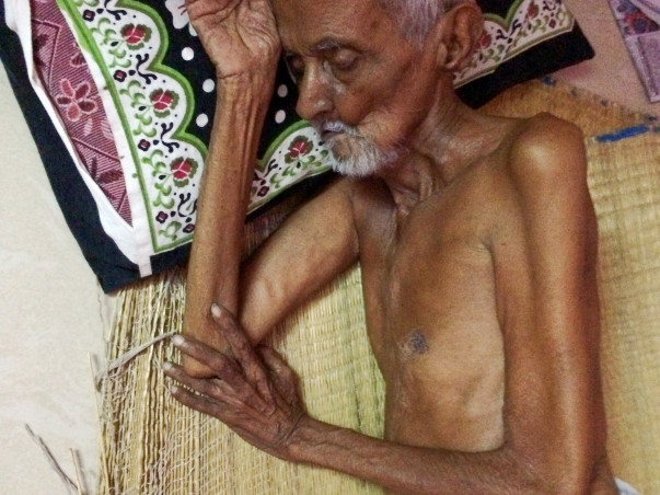 Urgent Treatment for 76 years old Grandpa