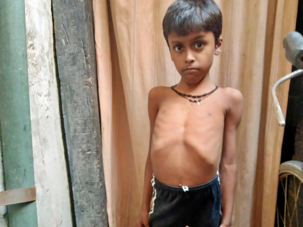 9 years old Sangam needs your help fight DUCHENE MUSCULAR DYSTROPHY