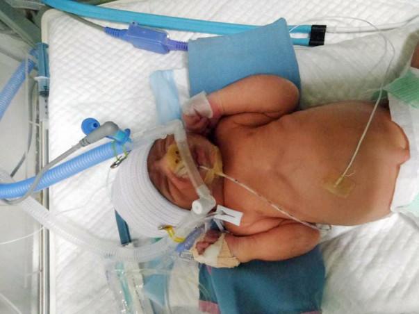 Help Baby Boy for Exploratory Laparotomy Surgery